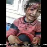 【シリア:戦争】爆撃で足に重傷を負った幼女。「もう歩けない」と泣いている・・・