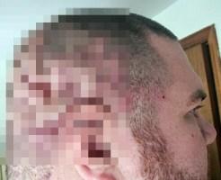 【閲覧注意】これはヤバい。頭がぶよぶよになって頭皮がほとんど剥がれてしまいました