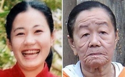 20歲少女像70歲老太,因為皮膚鬆弛症?