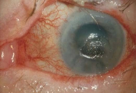 Are These Signs OfHerpes Zoster Ophthalmicus? 2