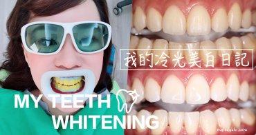 【美白】我的牙齒美白日記。冷光美白|用一小時的休息時間,給我ㄧ口白帥帥、亮晶晶的牙齒!