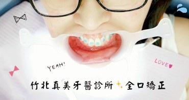 新竹竹北牙套 | 真美牙醫診所 舒眠植牙中心 兔兔暴牙 磨牙 全口矯正 臼齒墊高