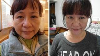 [醫美] 母親節禮物讓媽咪變更美麗 ♥ 電波拉皮初體驗