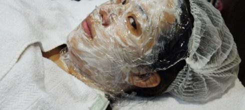 [醫美] scarlet韓式立體電波拉皮~隱形絲襪套頭之術