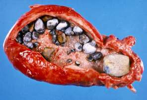 illustration of gall bladder with stones