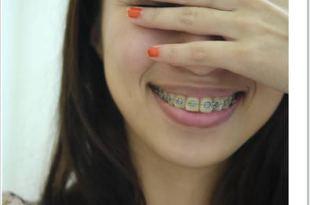 Yaya牙套日記第1天|就決定矯正了!牙醫診所&牙套預算篇