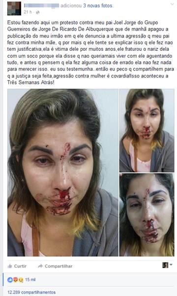 Pai de menino que publicou foto da mãe agredida: Não sou um monstro