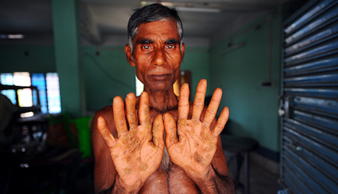 Jagadish Das, 52, a smallholder farmer of Mahishdanga village in Nadia district is a regular patient at Kolkata's School of Tropical Medicine. Doctors there have said the lesions on his hands and throat are effects of excessive arsenic in drinking water. His skin peels and bleeds frequently. (Photo by Dilip Banerjee)