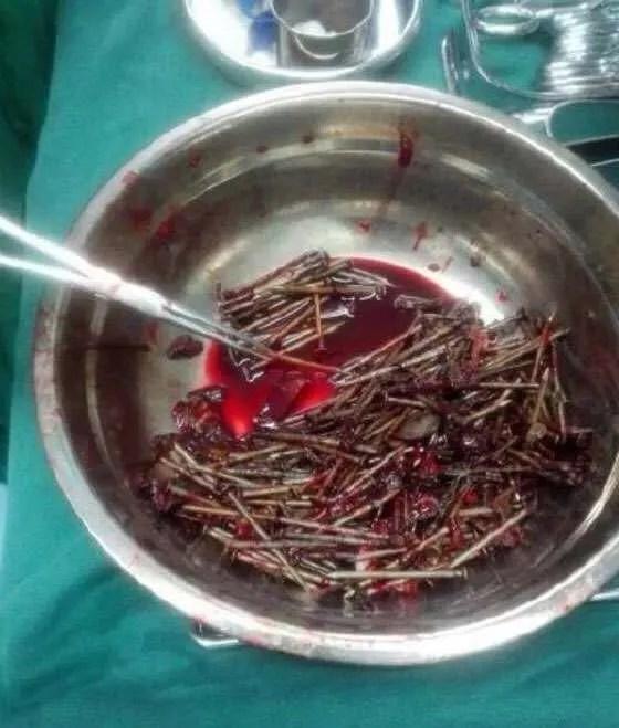 一少年肚子中有200多枚釘子,醫生都看了都驚呆了