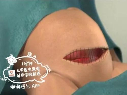 產後傷口護理不當,比生娃還痛苦!