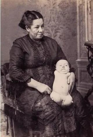 人類歷史上的十大怪物,沒有四肢的嬰兒最讓人揪心