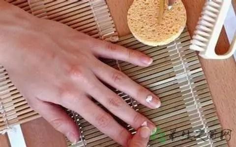 怎樣治療灰指甲偏方