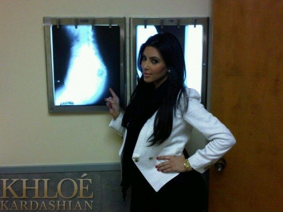 Kardashian X Ray Kim Kardashian Says Its 100% Real