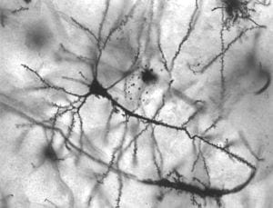 300px-Pyramidal_hippocampal_neuron_40x (1)