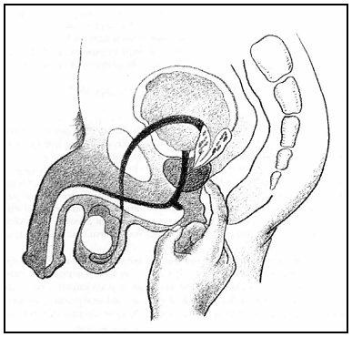 Finger Prostate orgasm