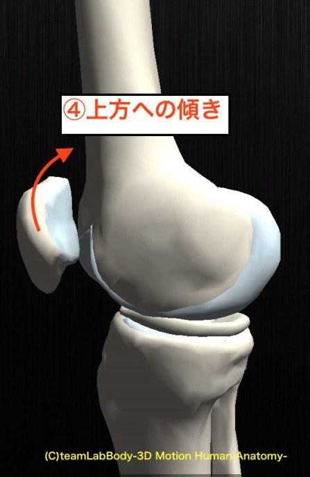 膝蓋骨 動き 横