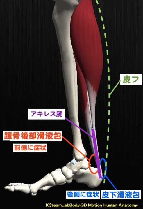 アキレス腱滑液包炎 症状