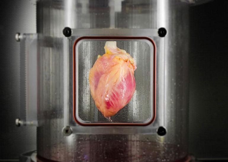 В США из клеток кожи вырастили сердечные мышцы человека