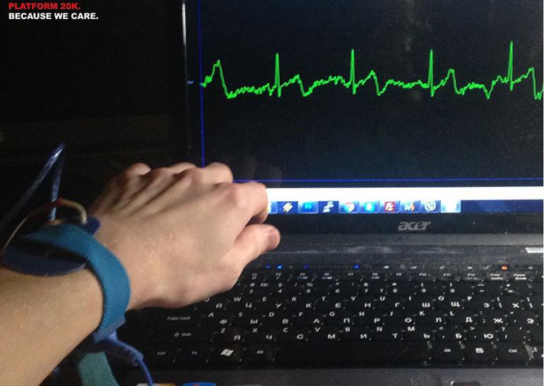 Украинская команда делает браслет, который читает ЭКГ и мониторит здоровье пользователя