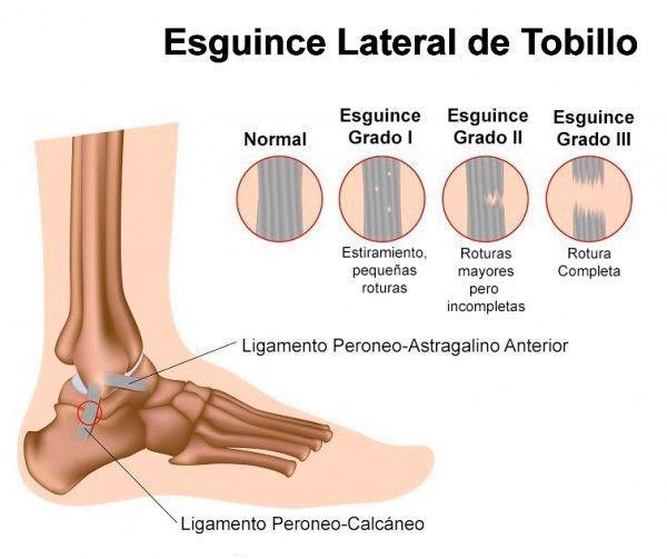 C3.1-LESIONES LIGAMENTOSAS TOBILLO - ESGUINCE LATERAL DE TOBILLO