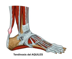 C3.1-TENDON-DE-AQUILES----TENDINOSIS