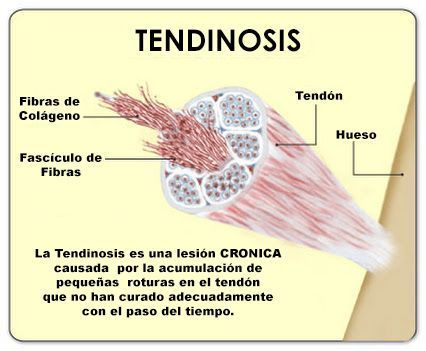 Tendinosis. Tendon, bone, fiber bundle, collagen fiber.  Tendinosis is a chronic injury caused by an accumulation of small tears in the tendon that have failed to heal properly over time. ©2012  MendMeShop®
