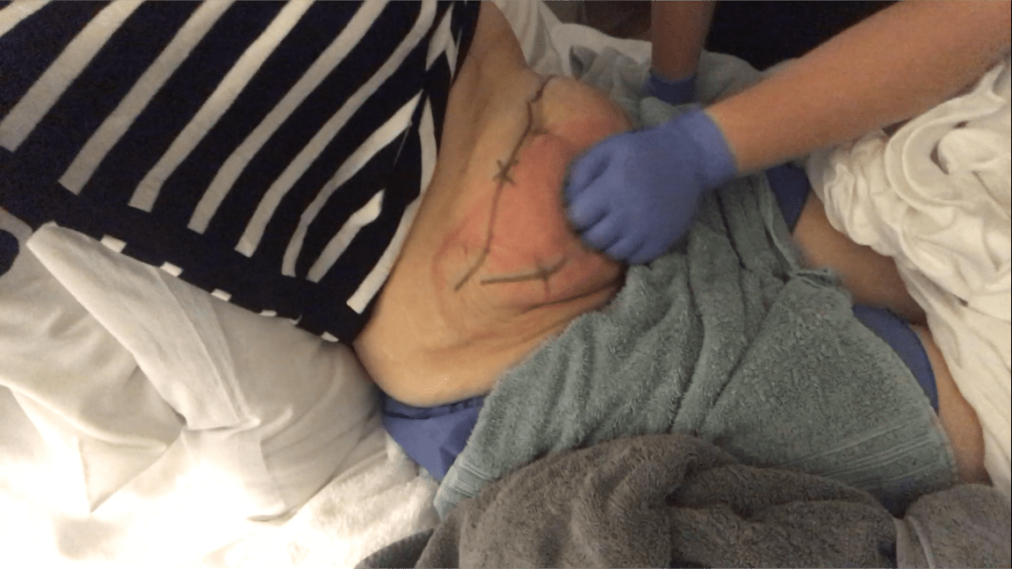 CoolSculpting Massage