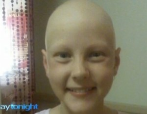 She was only nine years old when she lost every hair on her body