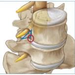 Spinal Neurosurgeon in Jackson