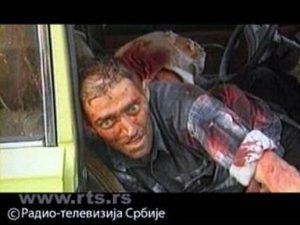 Рањени Србин