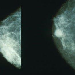 Mammobreastcancer