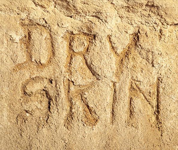 Hypothyroidism and Vaginal Dryness - Treato