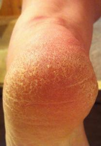 IMG 1022 208x300 Do your feet need a treat?  It's time to try Spongeables Pedi Scrub™.  #Review