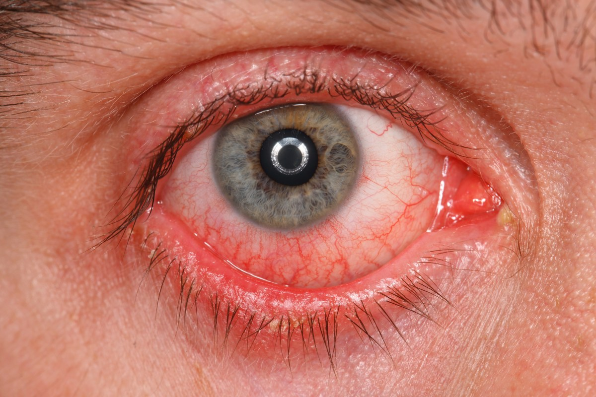 Types of eye infections in adults  Eye Disorders and