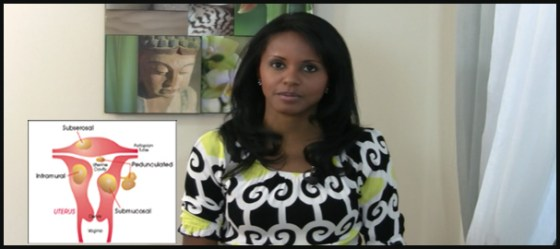 how to manage your fibroids