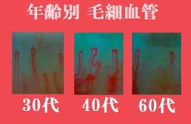 毛細血管再生・改善の報告!