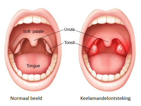 witte vlekken in keel