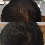 ヘッドスパで髪質改善はできるのか?