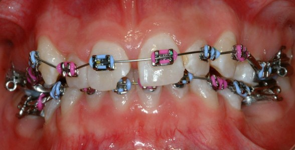 "A ""thinking about orthodontics"" blog post"