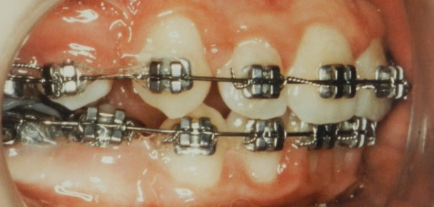 30 years of orthodontics….what has changed?