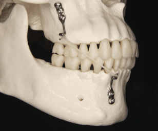 Another trial on maxillary protraction shows it works: but does it?