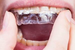 Which is better Invisalign or Fixed Appliances: Part 2: Does this new systematic review help?