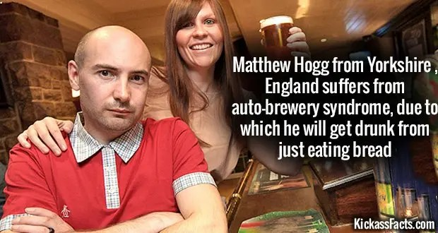 Auto Brewery Syndrome