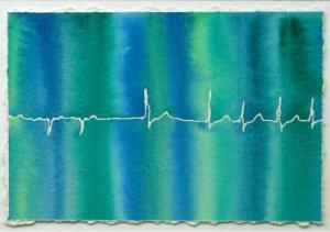 Blue-Green Atrial Fibrillation