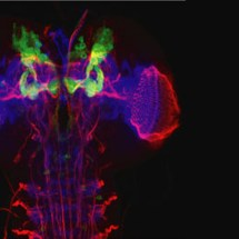 The Drosophila Odyssey: Spartin Insight into Troyer Syndrome
