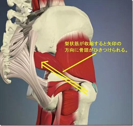 股関節痛み原因治療 梨状筋作用4.5