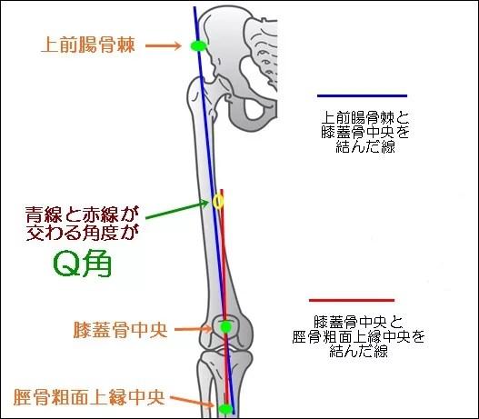 Q角(Qアングル)とは?