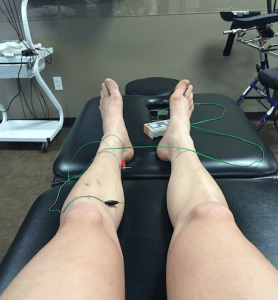 Dealing with Shin Splints