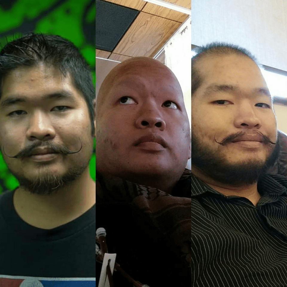 Tri Nguyen,24, shown after his diagonsis through difference stages of his treatment. (Courtesy of Emma Massick)