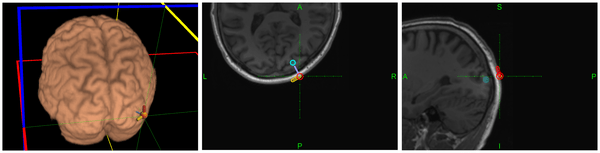 Brain to Brain